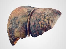 Los nanomateriales magnéticos podrían ayudar al tratamiento contra la fibrosis hepática