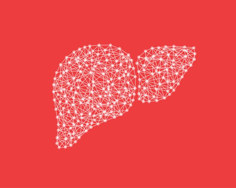 cirrosis de la histopatología del hígado diabetes